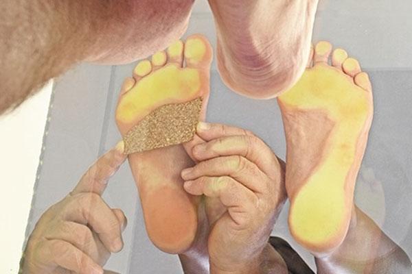 Mit Hilfe des Podoskops können die Keile unter den Füße platziert werden